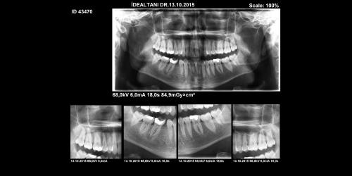 panoramik-dental-goruntuleme-01